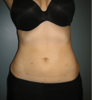 Manhattan liposuction after 5